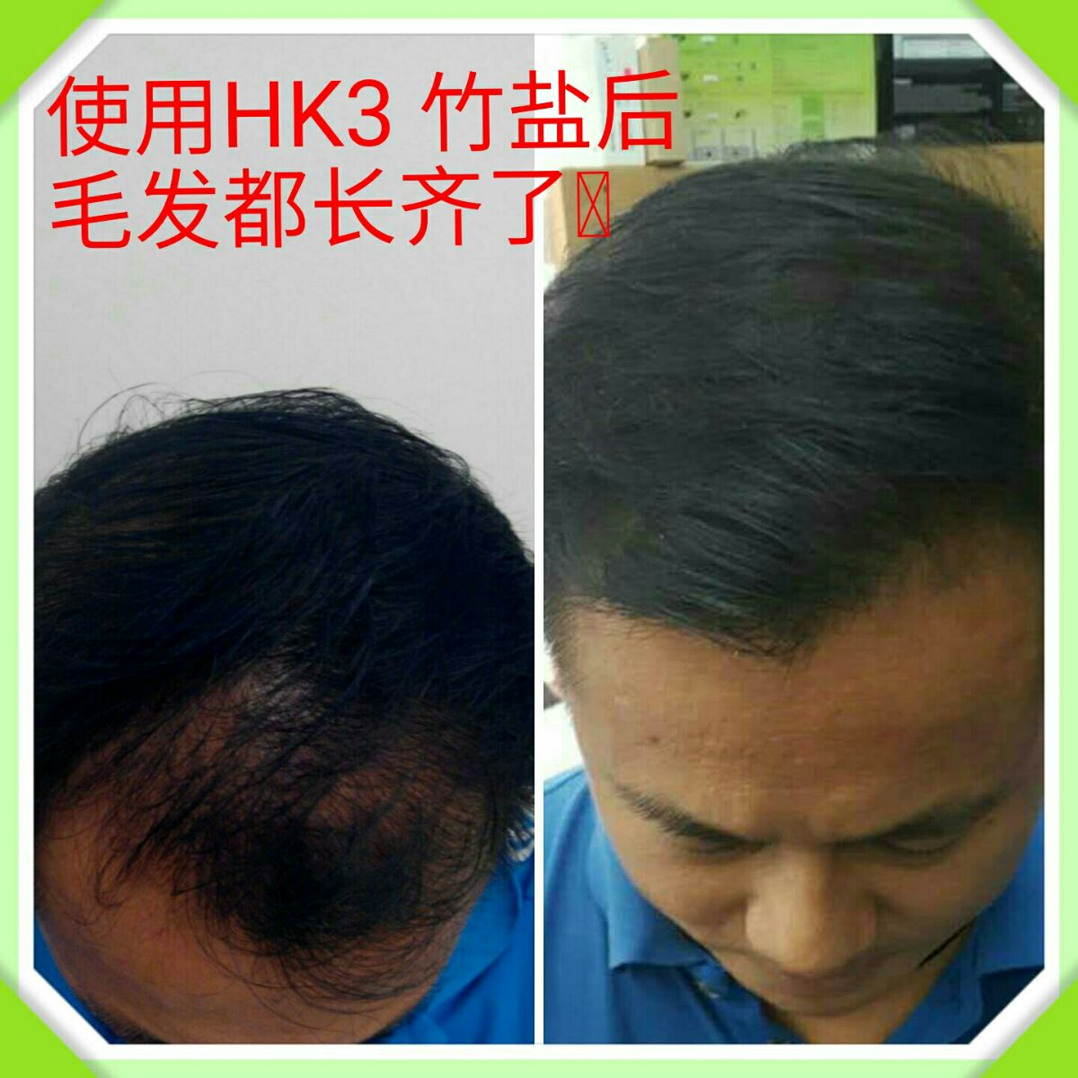 hk3 bamboo salt review hair loss