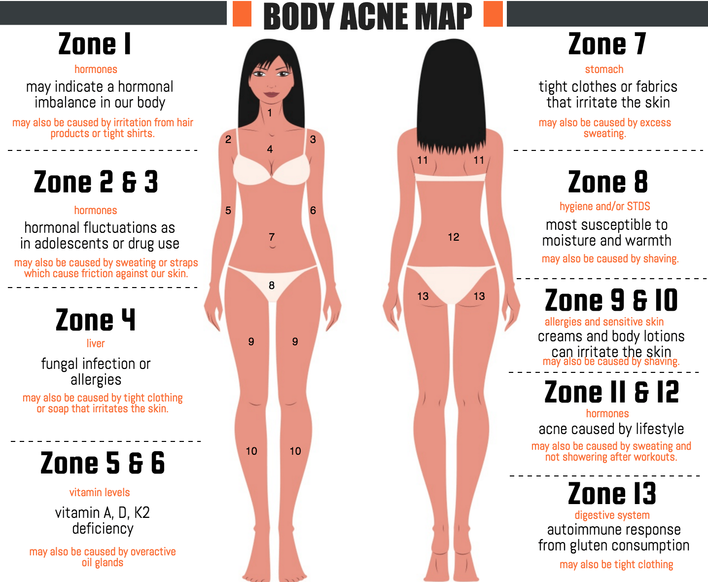 body-acne-map